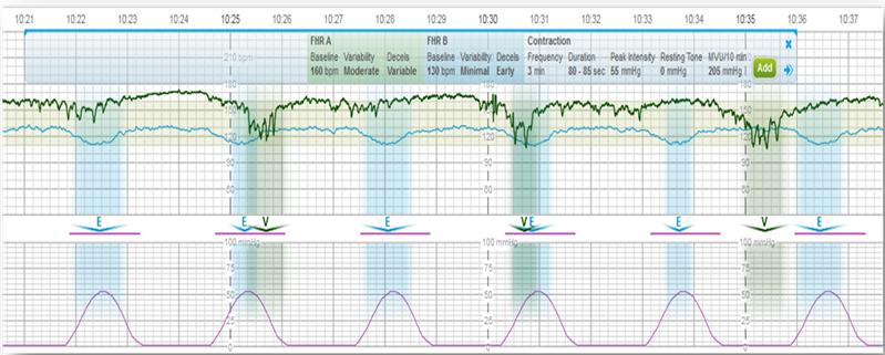 Centricity Perinatal Fetal Strip Monitor