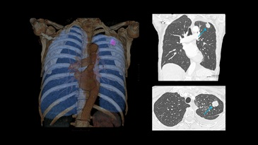 Low-dose chest CT for lung cancer follow-up