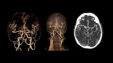 Low-dose and high-quality CT for Circle of Willis
